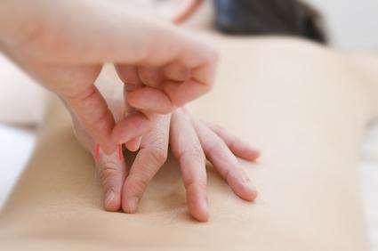 Abnehmen durch Akupunktur