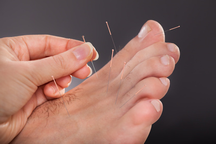 Akupunktur am Fußrücken gegen Migräne