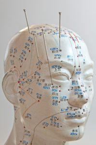 Die Mikroakupunktursysteme sorgen dafür, dass Patienten nur an kleinen Stellen am Körper akupunktiert werden müssen.